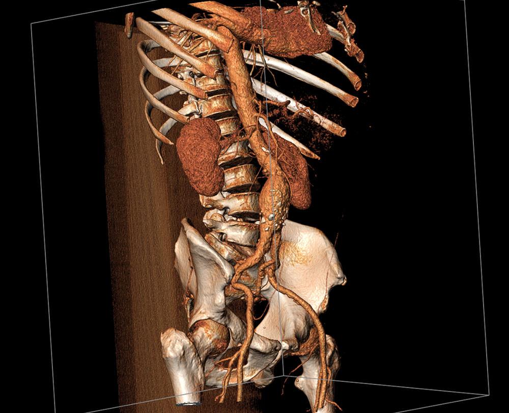 tętniak aorty brzusznej przed leczeniem