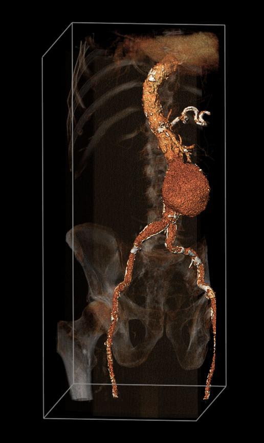 tętniak aorty brzusznej przed leczeniem, mirosław stelągowski chirurg naczyniowy Łódź