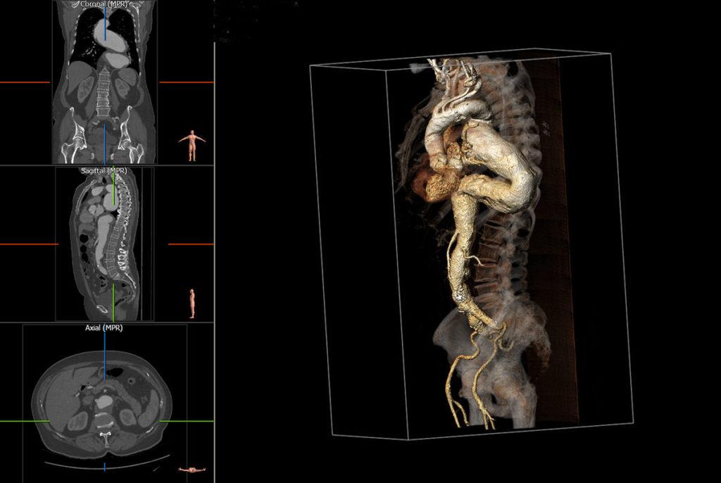 tętniak piersiowo-brzuszny przed leczeniem, mirosław stelągowski chirurg naczyniowy Łódź