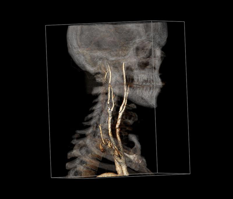 Zwężenie tętnic szyjnych, chirurg naczyniowy Łódź